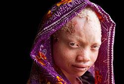 Le bûcher des sorcières en Tanzanie